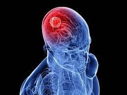 Awas! Bahaya Tumor Otak, Ini Dia Gejala yang Perlu Kamu Waspadai