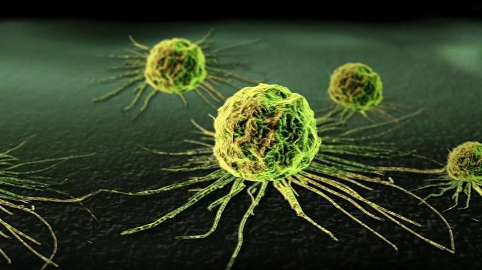 Kenal Lebih Dekat Dengan Kanker Kolorektal