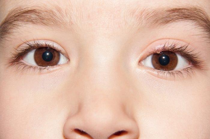 Mata Bintitan? Berikut Cara Mencegah dan 3 Penyebabnya