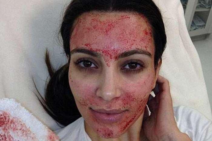 Ngeri, Ini Dia Facial Vampire yang Dilakukan Kim Kardashian, Berani Coba?