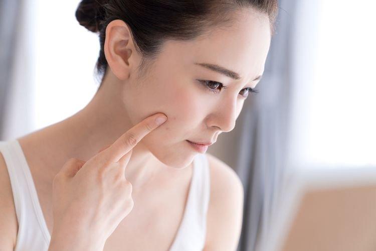 Timbul Jerawat Belum Tentu Karena Tak Cocok Skin Care